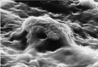 biocompatibilita-impianto-dentale-in-ceramica