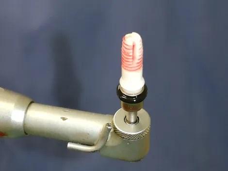 inserimento-impianto-dentale-in-ceramica