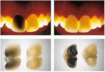 corone-metallo-ceramico-vs-zirconia