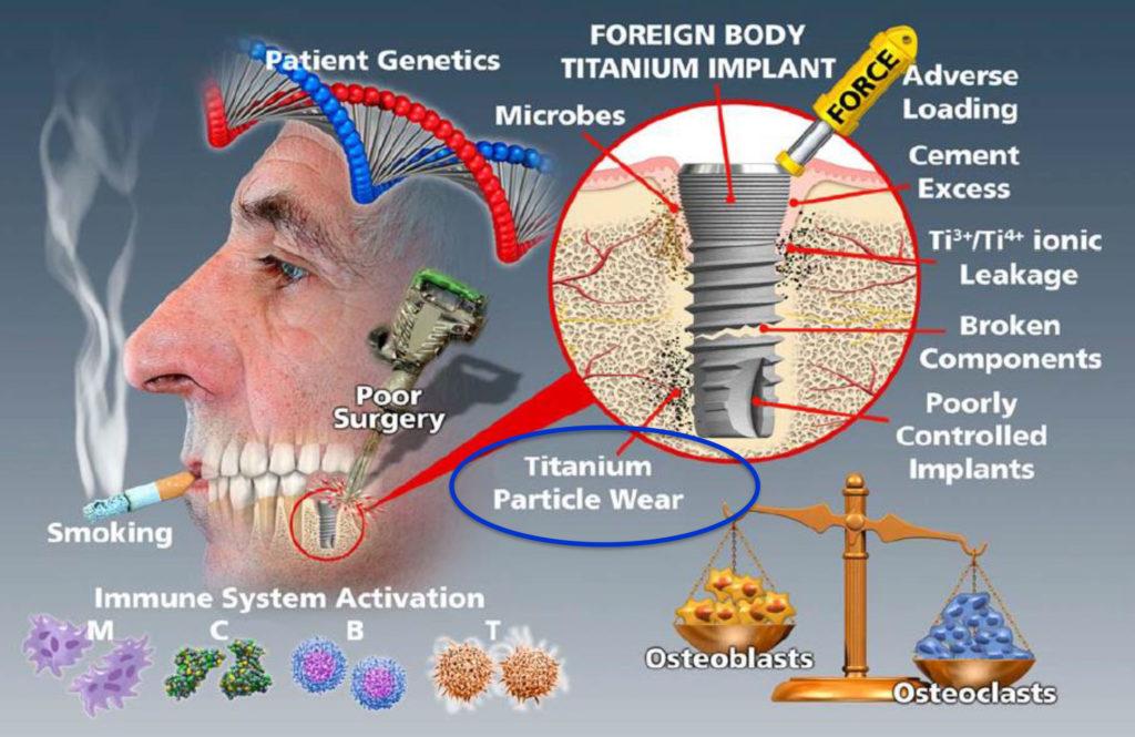 corrosione-impianti-dentali-in-titanio